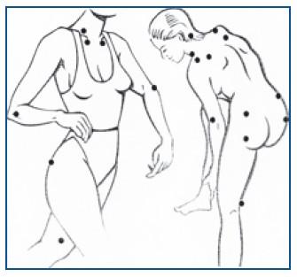 Fibromyalgia ensioireet